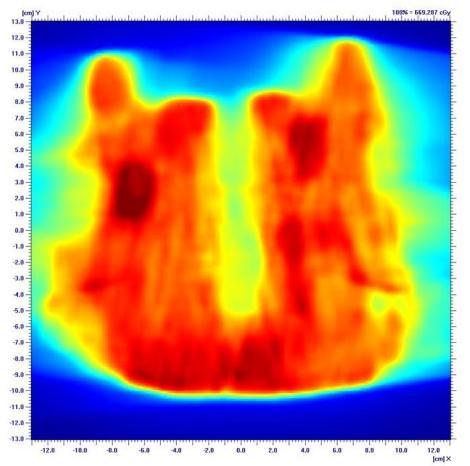 En un campo de intensidad modulada la fluencia puede adaptarse a los requerimientos de la anatomía y la patología
