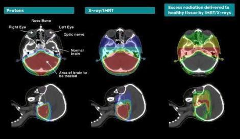 Comparación de un tratamiento con protones y otro con IMRT en un caso de tumor cerebral pediátrico. Las figuras de la derecha representan el exceso de dosis liberada a tejido sano con el tratamiento con fotones (Fuente: ProCure Training and Development Center)