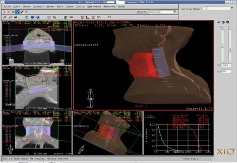 Palnificación de cabeza y cuello con el 3D TPS XiO