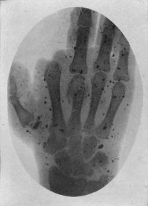 Placa de rayos X de la mano de un soldado herido durante la I GM (Fuente: wikimedia)