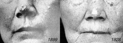 Epitelioma 1899-1928