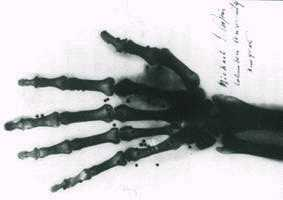 Mano radiografiada por Papin