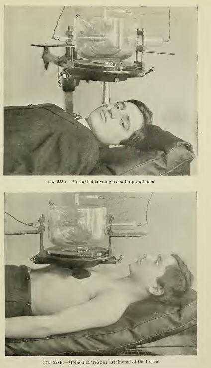 Fuente: Röntgen Rays and Electro-therapeutics - Mihran Krikor Kassabian 1907