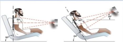 Posicionamiento del paciente con equipo de rayos X portátil